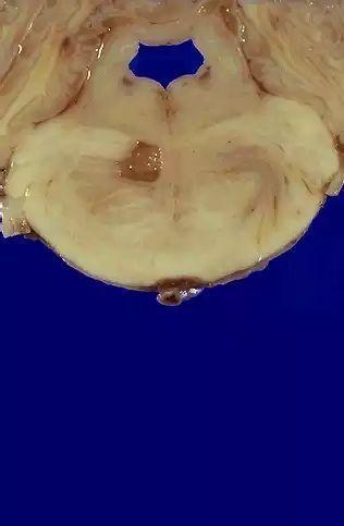 腔隙性脑梗塞