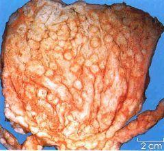 腺性膀胱炎