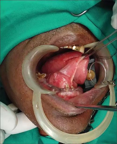 舌下腺囊肿