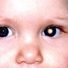 视网膜母细胞瘤