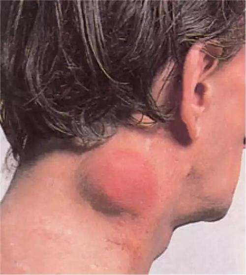 非霍奇金淋巴瘤