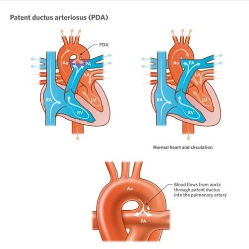 动脉导管未闭
