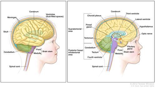 小儿脑干胶质瘤