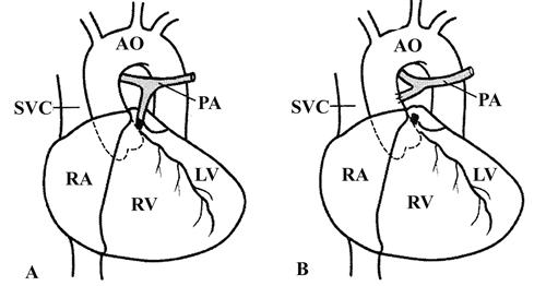 肺动脉闭锁