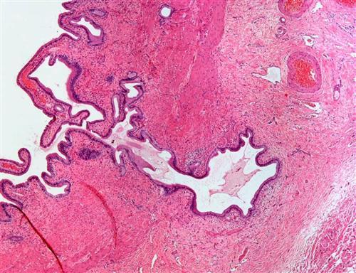 慢性胆囊炎