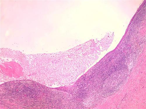皮脂腺囊肿