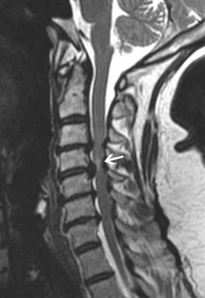 脊髓型颈椎病