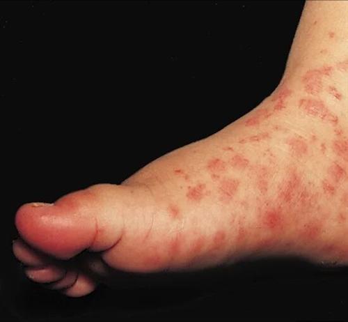 丘疹性荨麻疹