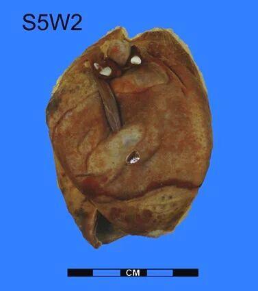 卵巢畸胎瘤