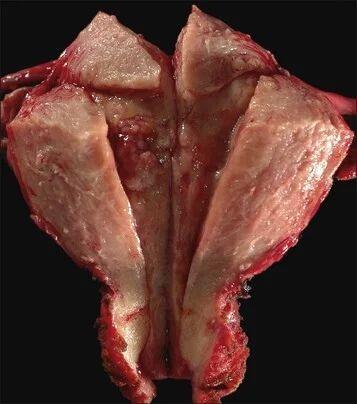 子宫内膜薄