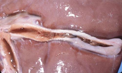 慢性胆管炎