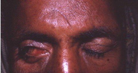 暴露性角膜炎