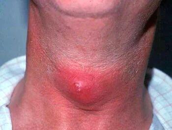 甲状腺囊肿