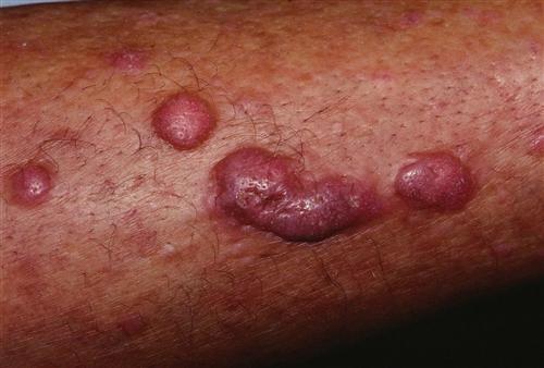 结节性痒疹