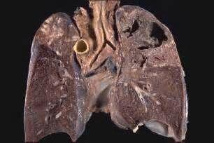 继发性肺结核