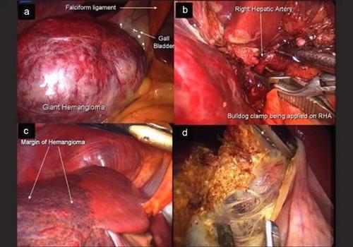 肝脏血管瘤