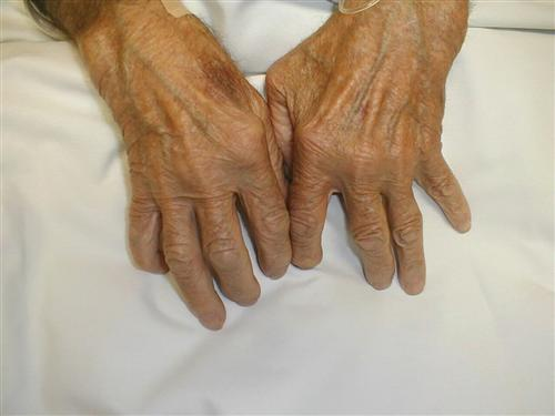 风湿性关节炎