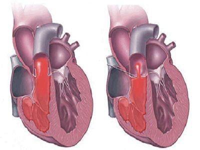 先天性心脏病