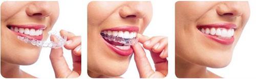 唇系带异常矫正