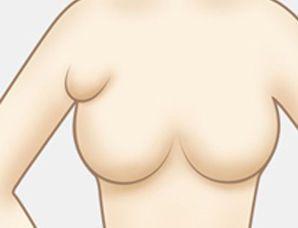 多乳头多乳房畸形