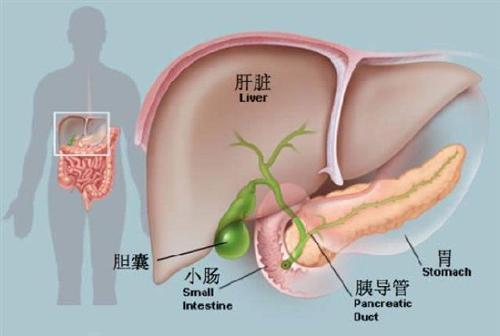 急性胰腺炎