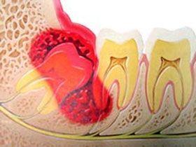 智齿冠周炎