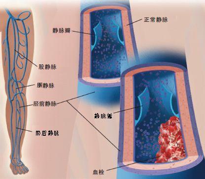 深静脉血栓形成