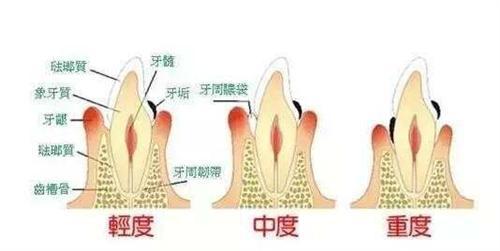 糖尿病型牙周炎