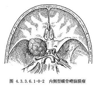 蝶骨嵴脑膜瘤