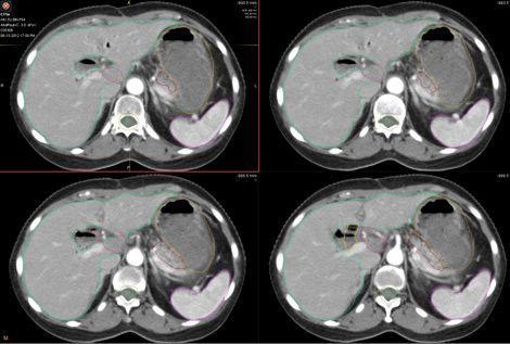 十二指肠腺癌
