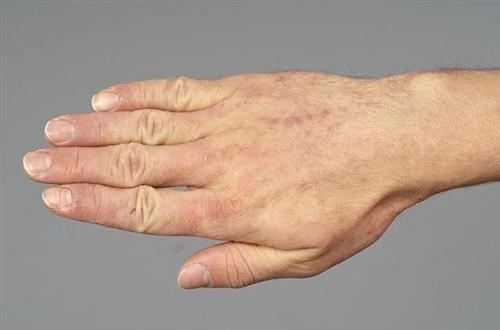 接触性皮炎