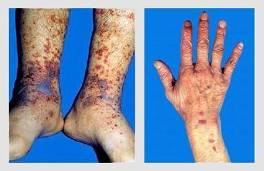 血小板减少性紫癜
