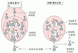 免疫缺陷病