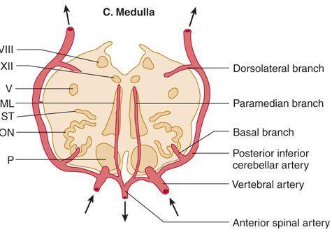 基底动脉型偏头痛