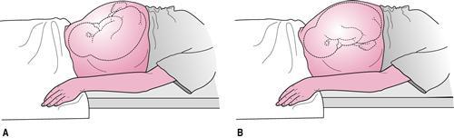 持续性枕横位难产