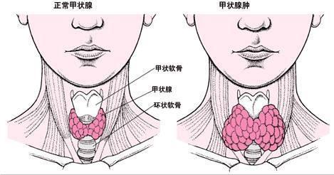 甲状腺肿大