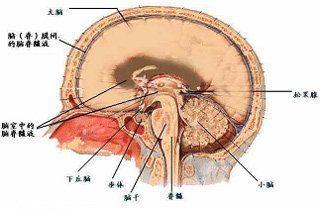脑室内脑膜瘤