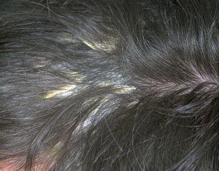 石棉状糠疹