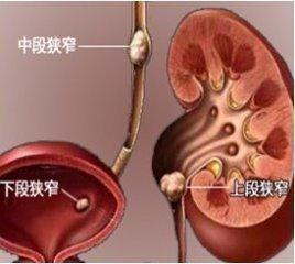 输尿管结石