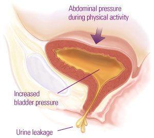 压力性尿失禁