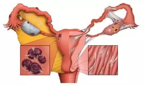 子宫内膜结核
