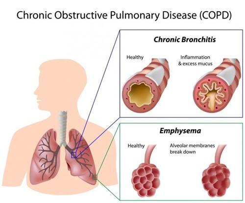 慢性阻塞性肺疾病