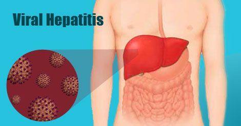 病毒性肝炎