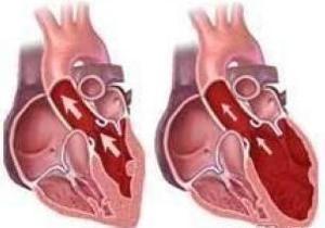 肥厚型梗阻性心肌病