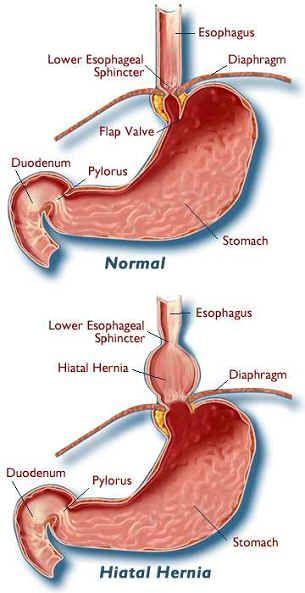 食管裂孔疝