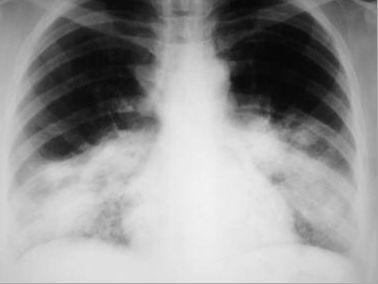 细菌性肺炎