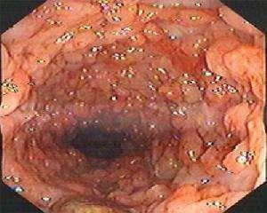 小儿溃疡性结肠炎