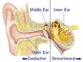 传导性耳聋