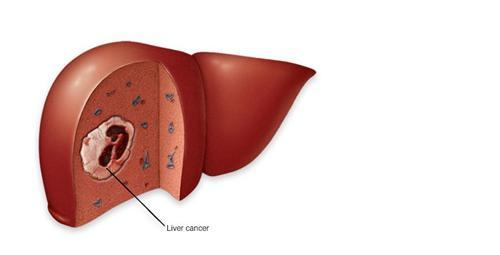 原发性肝癌