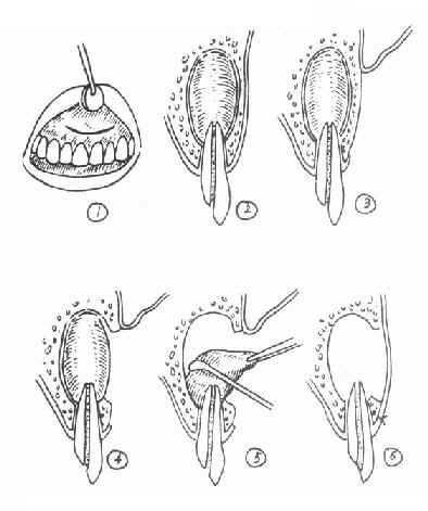 口腔颌面部肿瘤